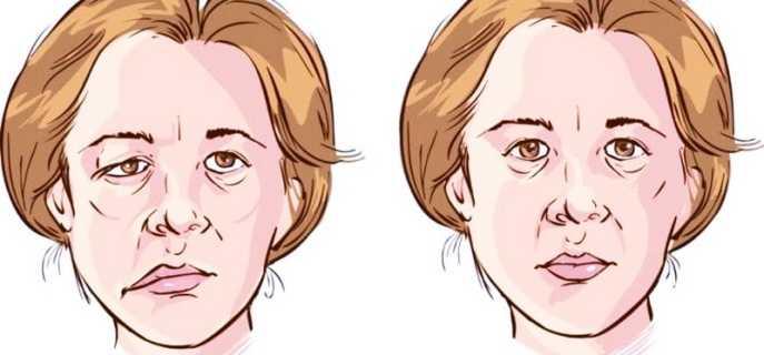 Виды парезов лицевого нерва