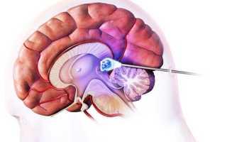 Насколько опасна киста головного мозга