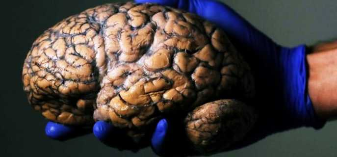 Строение головного мозга человека