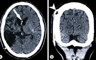 Что такое псевдокиста головного мозга и почему возникает