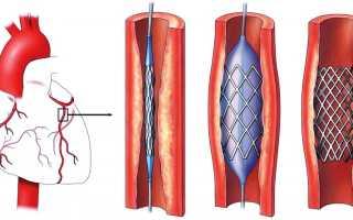 Как вылечить атеросклероз народными средствами и медикаментами