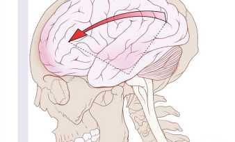 Виды, диагностика и лечение травм головы