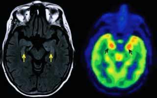 Формы, причины и симптомы энцефалита
