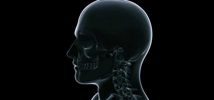 Противопоказания, показания и особенности рентгена головы