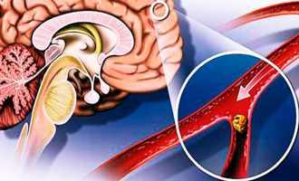 В каких случаях делают шунтирование головного мозга