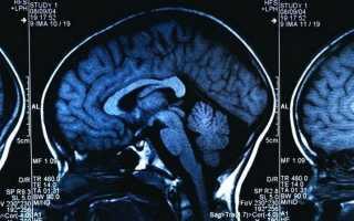 Способы лечения опухоли головного мозга