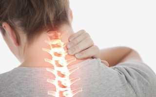 Шейная мигрень, её симптомы и лечение
