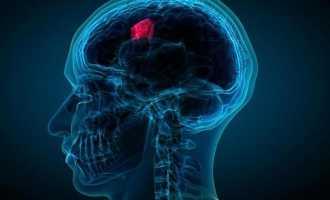 Опухоли головного мозга