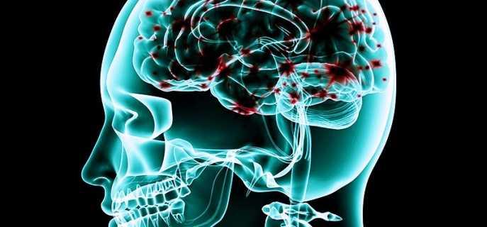 Причины ишемических атак, их симптомы и лечение