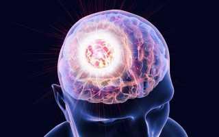 Поддаются ли лечению метастазы в головном мозге