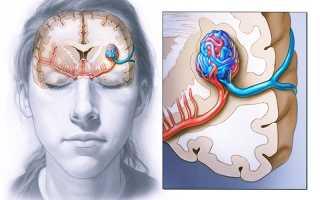 Причины и классификация мальформаций сосудов головного мозга