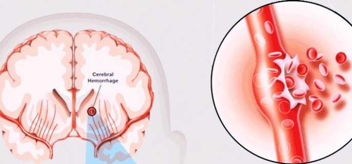 Причины, виды, симптомы и лечение инсультов с кровоизлиянием