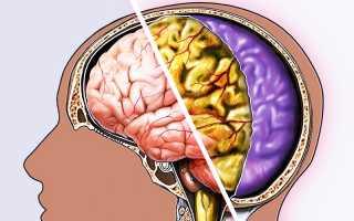 Пути передачи, симптомы и  лечение вирусного менингита