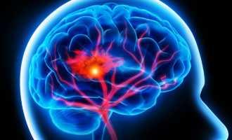 Прогноз после инсульта головного мозга