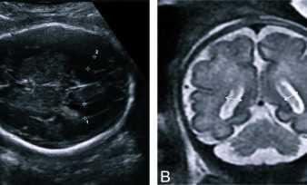 Причины, проявления, диагностика и лечение вентрикуломегалии у плода