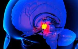 Характеристики, симптомы, причины и лечение кисты гипофиза