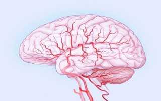 Заболевания сосудов головного мозга и их диагностика