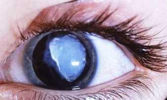 От чего появляется пелена перед глазами