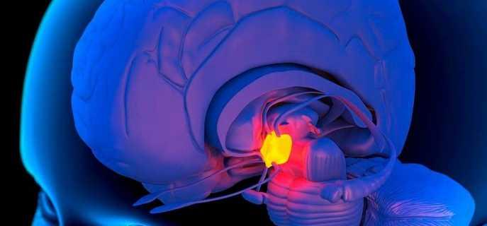 Турецкое седло головного мозга
