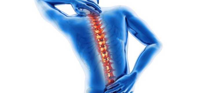 Поставили диагноз: шейный и крестцово-поясничный остеохондроз