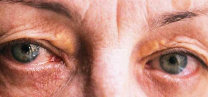 Причины, симптомы и методы избавления от синдрома Шегрена