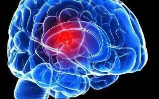 Сколько можно прожить с опухолью головного мозга