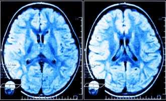 Симптомы и профилактика лейкоэнцефалопатии головного мозга
