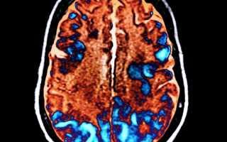 Причины, виды и лечение токсической энцефалопатии