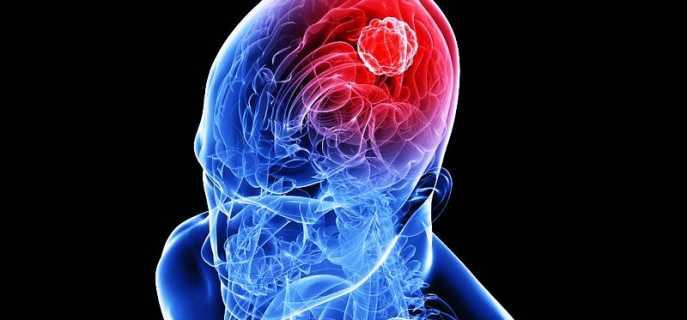 Симптомы и диагностика глиомы головного мозга