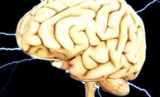 Обширный инсульт головного мозга