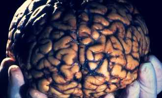 Сколько живёт человеческий мозг после смерти