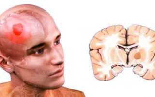 Причины, классификация, симптомы и лечение поражений головного мозга