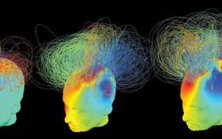 Биоэлектрическая активность мозга