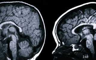 Причины и прогноз для больных синдромом Денди-Уокера