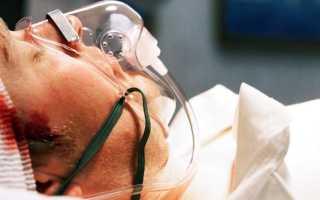 Кома после черепно-мозговой травмы