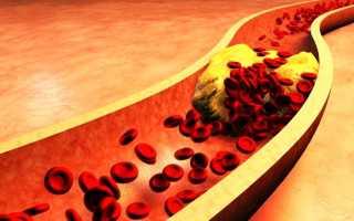 Прогнозы при диагнозе ишемический инсульт головного мозга у пожилых