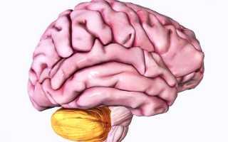 Причины образования опухолей мозжечка, их классификация, диагностика и лечение