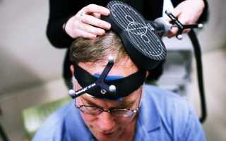 Транскраниальная магнитная стимуляция мозга