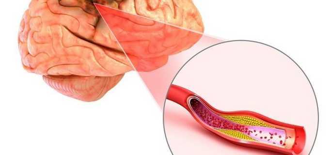 От чего появляется церебральный атеросклероз