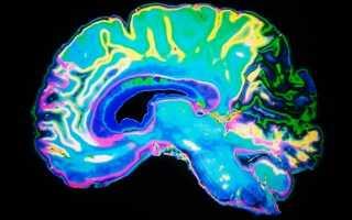Центр речи мозга человека и его патологии