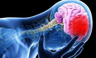 Инсульт левой стороны головного мозга