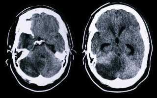 Причины, виды, симптомы и лечение инсульта мозжечка