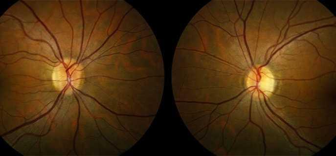 Виды, причины, симптомы и лечение ретробульбарного неврита