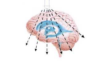 Подробно об НСГ головного мозга у детей