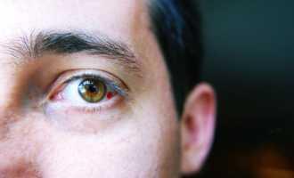 Виды, причины и лечение кровоизлияния в глаз