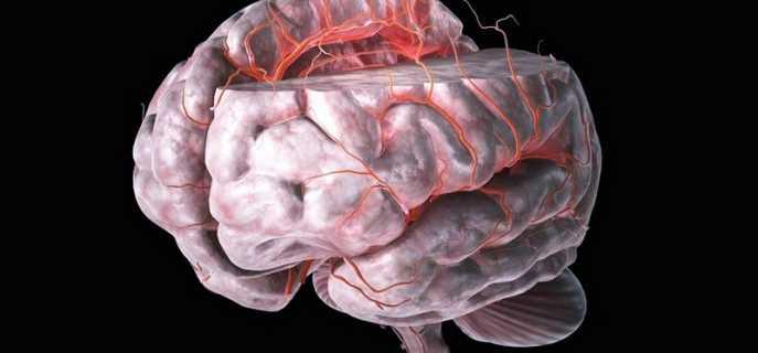 Признаки и лечение инсульта в бассейне средней мозговой артерии