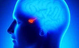 Что такое аденома гипофиза