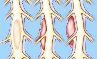 Виды, причины, признаки и способы лечения опухолей спинного мозга