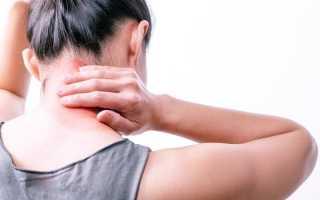 Причины, симптомы и способы лечения фибромиалгии