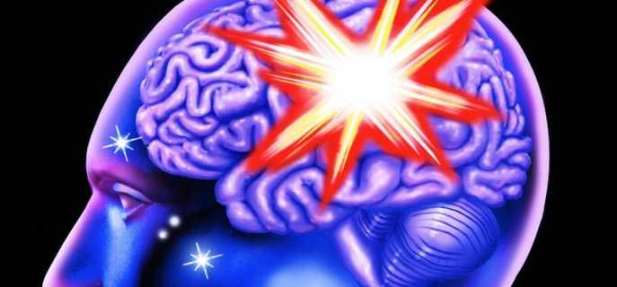 Кровоизлияние в головной мозг